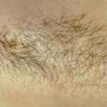 hair_removal_img6_1