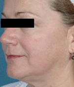 laser skin tightening after
