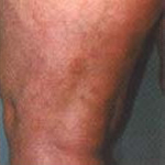 spider vein removal treatment after