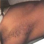 hair_removal_img4_1