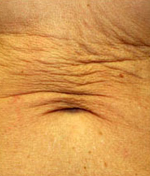 laser-skin-tightening-flabby-belly_1