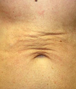 laser-skin-tightening-flabby-belly_2