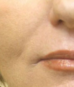 laser-skin-tightening-lip_1