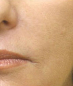 laser-skin-tightening-lip_2
