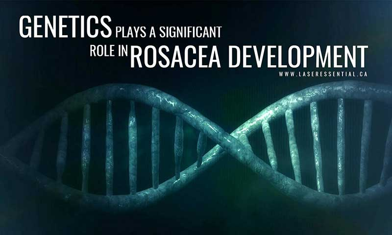 Genetics plays a significant role in rosacea development