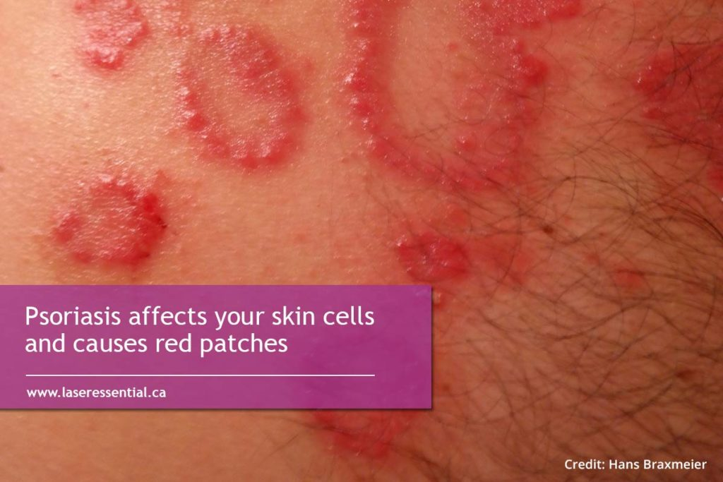 Psoriasis affects your skin cells and causes red patches
