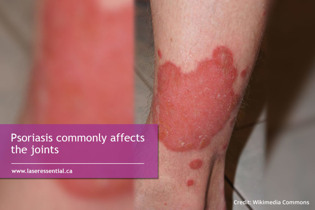 Psoriasis commonly affects the joints