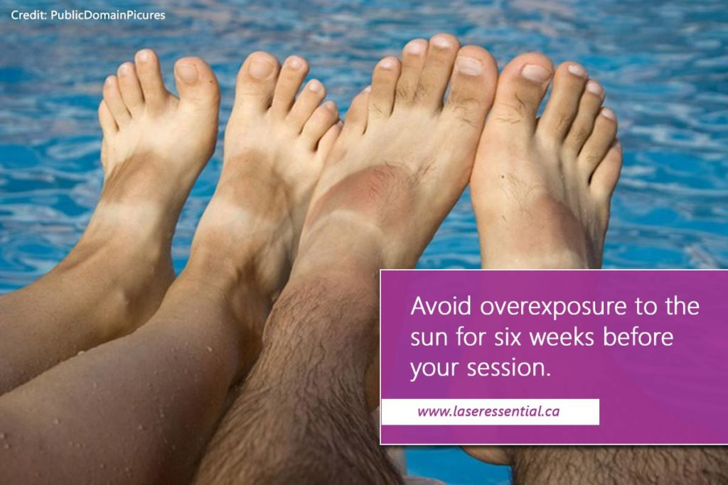 Avoid overexposure to the sun for six weeks before your session Credit: PublicDomainPicures