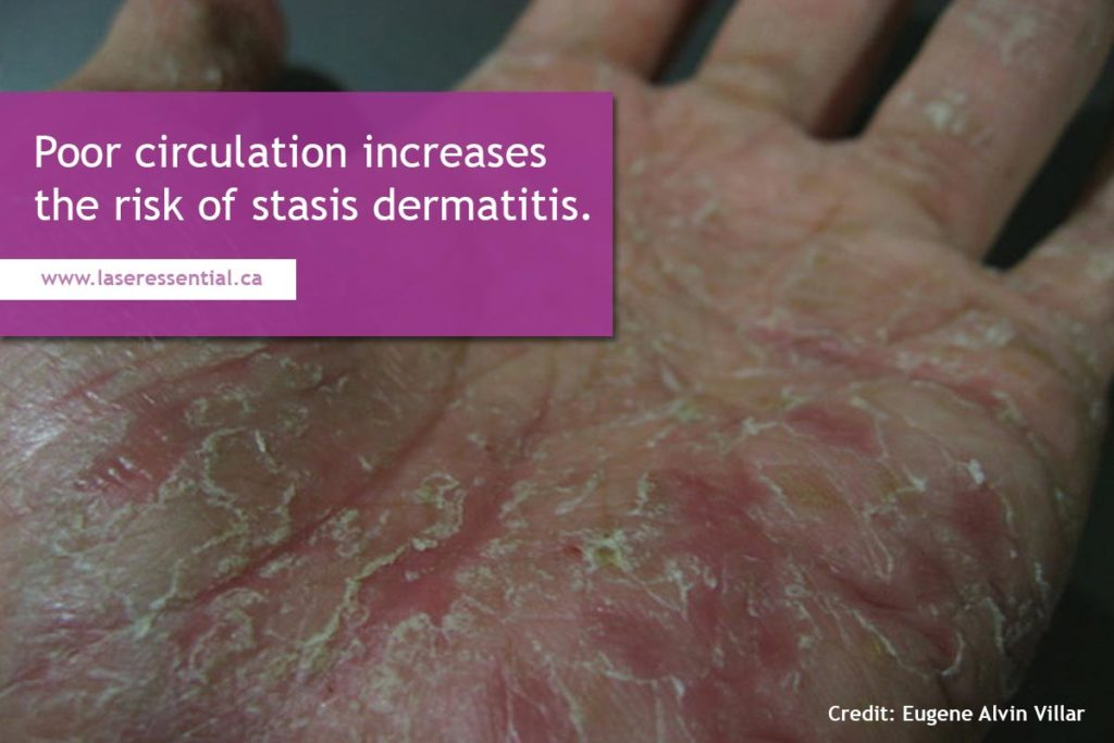 Poor circulation increases the risk of stasis dermatitis.