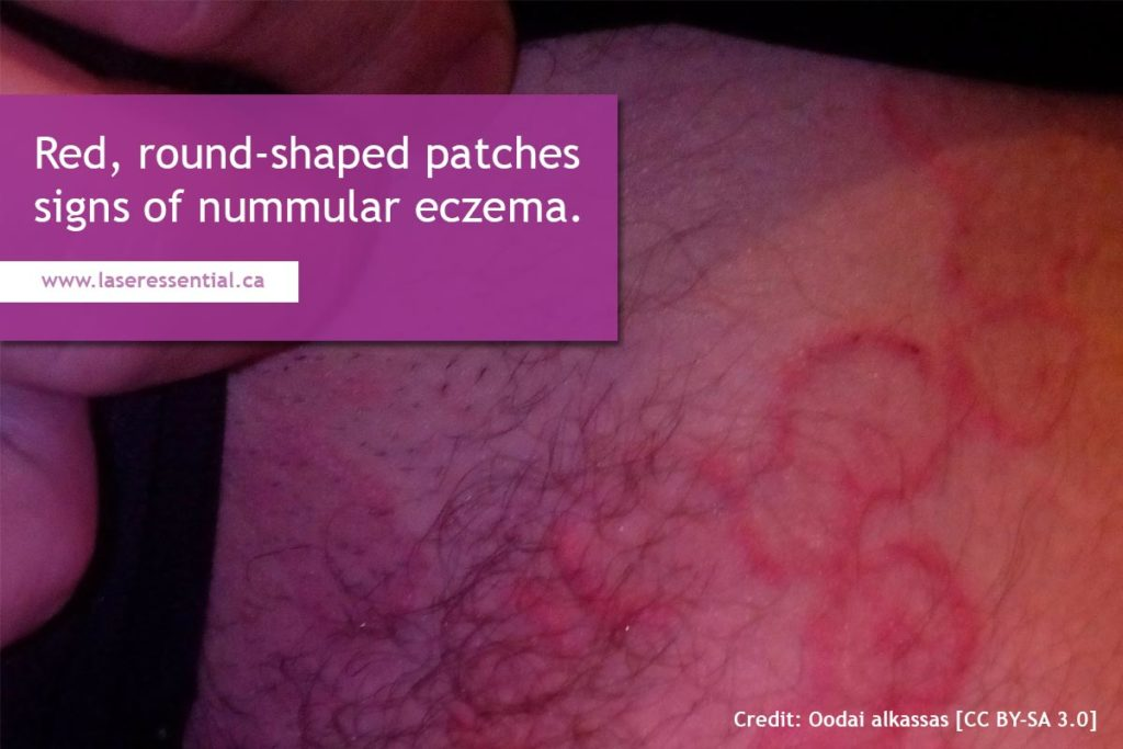 Red, round-shaped patches signs of nummular eczema.