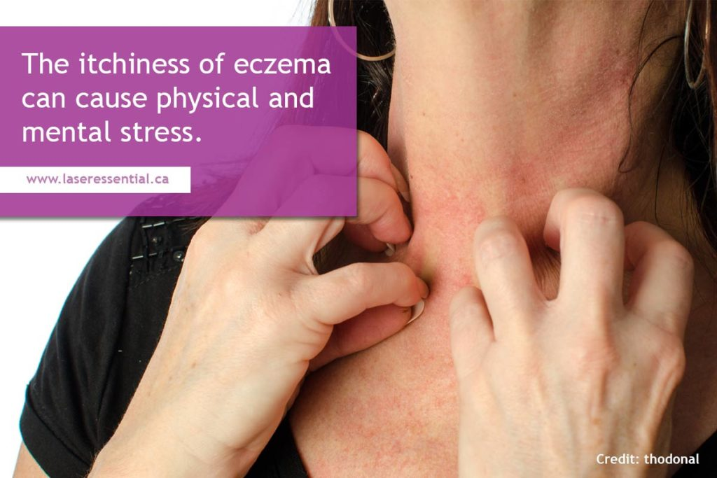 The itchiness of eczema can cause physical and mental stress