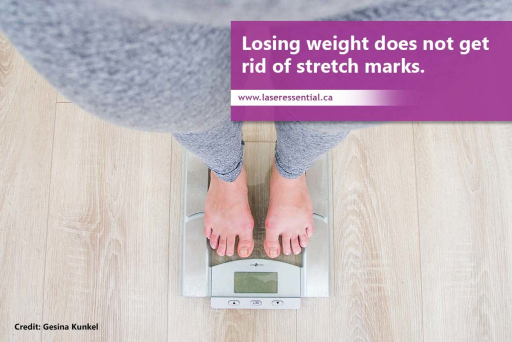 Losing weight does not get rid of stretch marks.