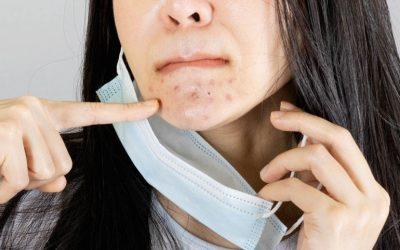 Maskne: the acne underneath